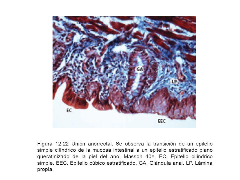 Figura 12-22 Unión anorrectal