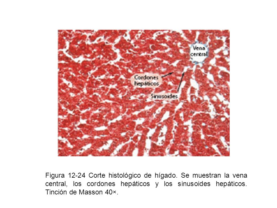 Figura 12-24 Corte histológico de hígado