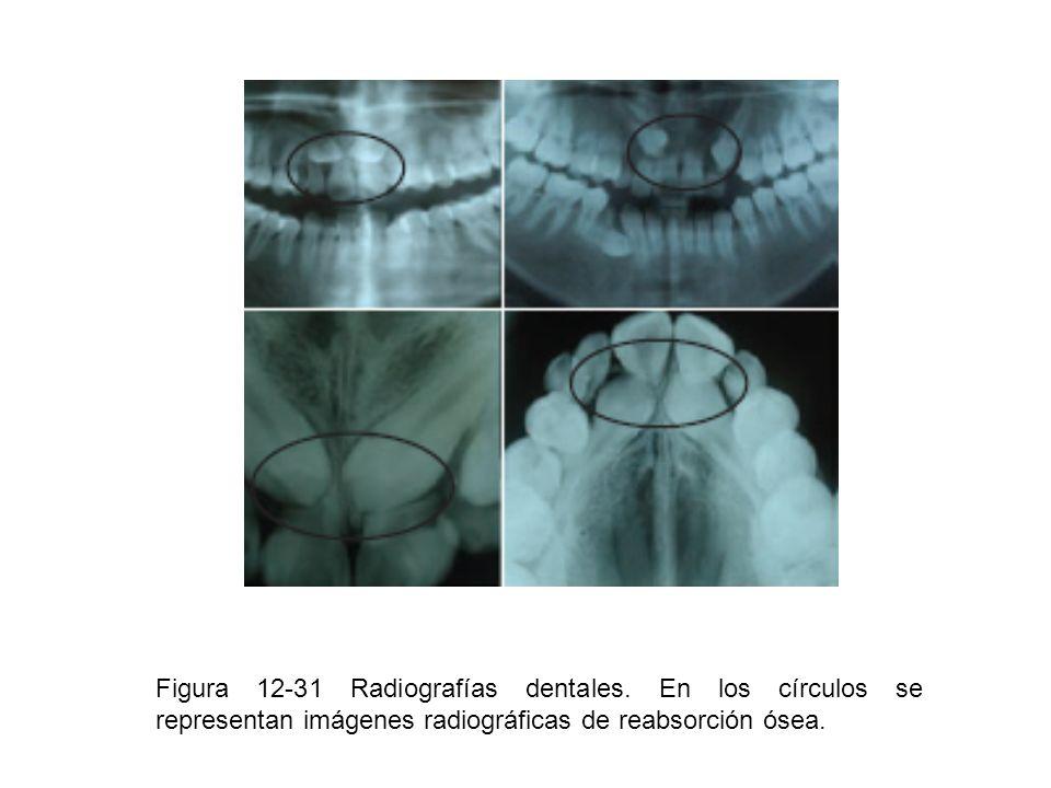 Figura 12-31 Radiografías dentales