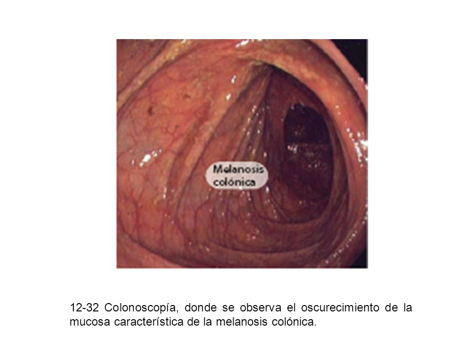 12-32 Colonoscopía, donde se observa el oscurecimiento de la mucosa característica de la melanosis colónica.