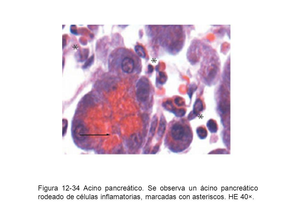 Figura 12-34 Acino pancreático