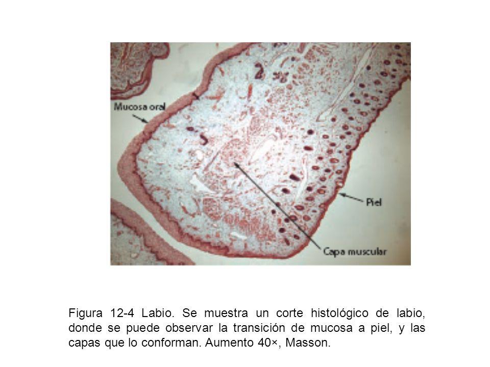 Figura 12-4 Labio.