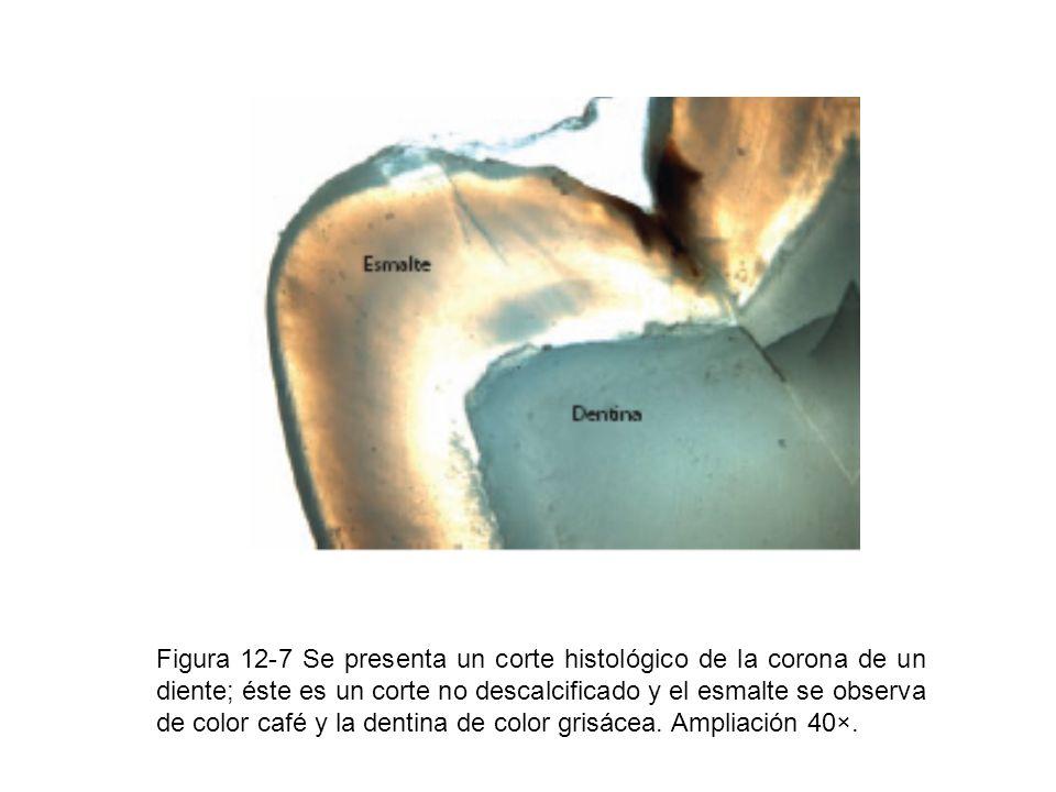 Figura 12-7 Se presenta un corte histológico de la corona de un diente; éste es un corte no descalcificado y el esmalte se observa de color café y la dentina de color grisácea.
