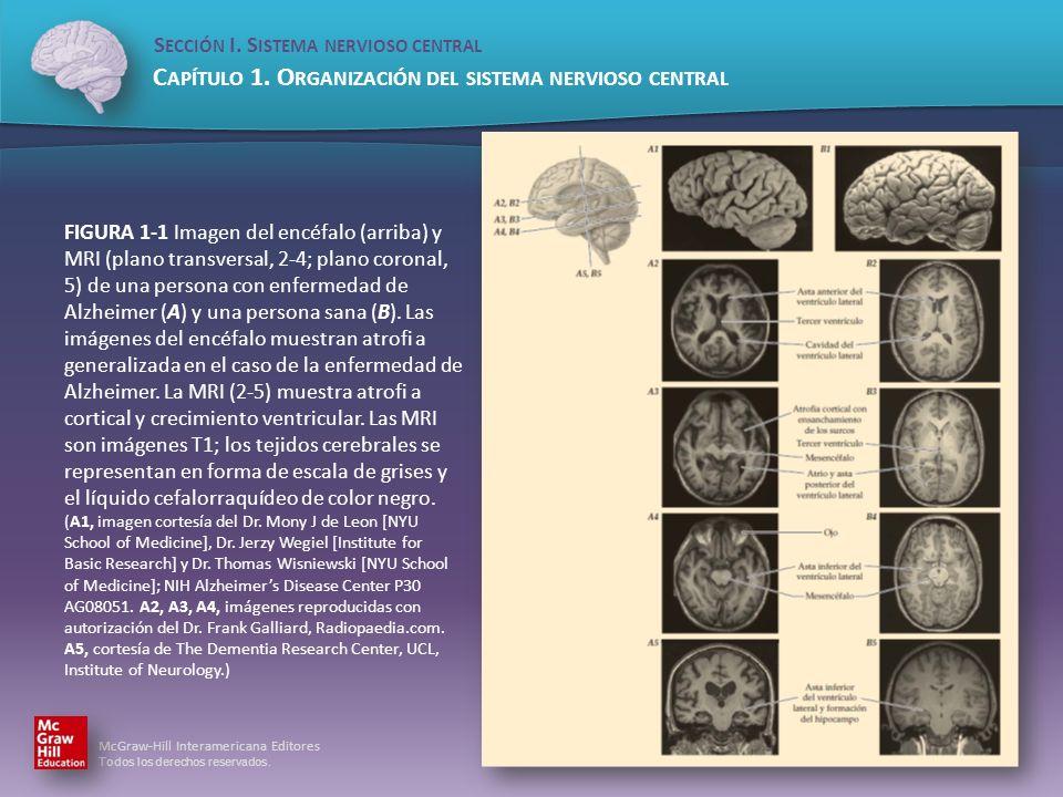 FIGURA 1-1 Imagen del encéfalo (arriba) y MRI (plano transversal, 2-4; plano coronal, 5) de una persona con enfermedad de Alzheimer (A) y una persona sana (B).