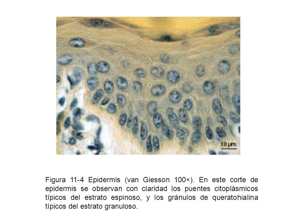 Figura 11-4 Epidermis (van Giesson 100×)