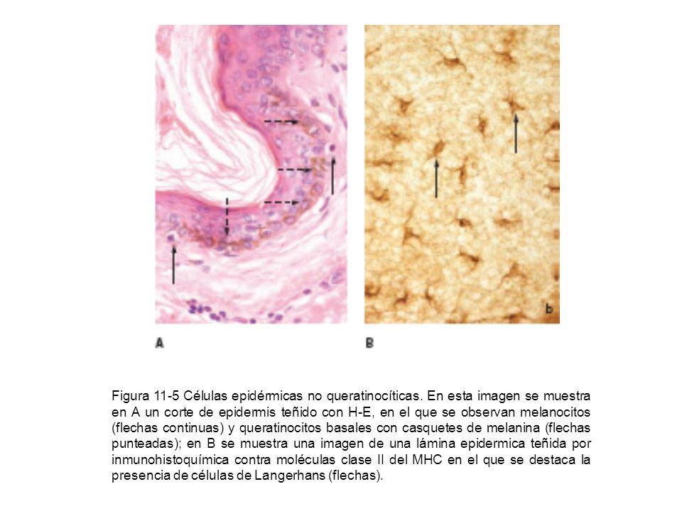 Figura 11-5 Células epidérmicas no queratinocíticas