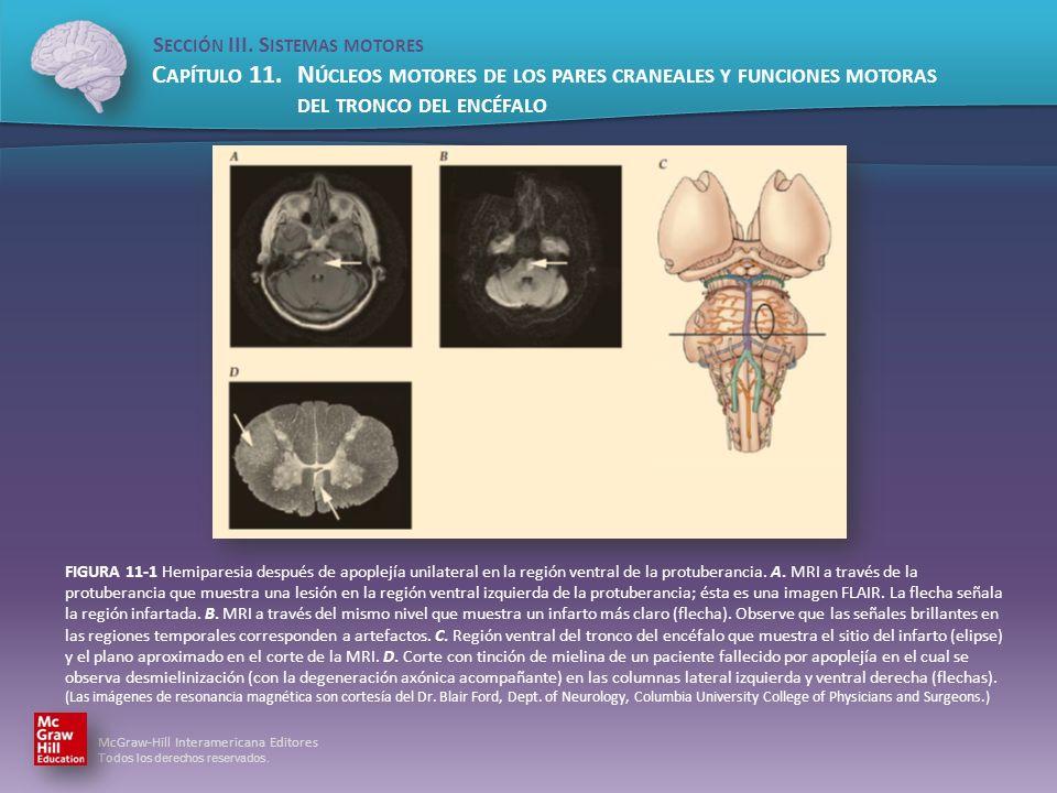 FIGURA 11-1 Hemiparesia después de apoplejía unilateral en la región ventral de la protuberancia.