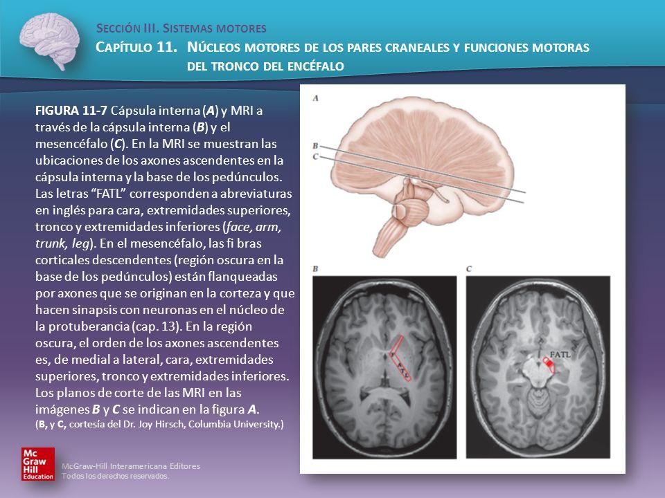 FIGURA 11-7 Cápsula interna (A) y MRI a través de la cápsula interna (B) y el mesencéfalo (C).