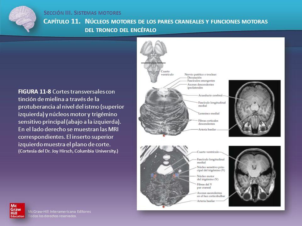 FIGURA 11-8 Cortes transversales con tinción de mielina a través de la protuberancia al nivel del istmo (superior izquierda) y núcleos motor y trigémino sensitivo principal (abajo a la izquierda).