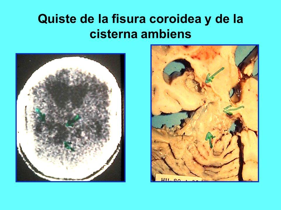 Atractivo Anatomía Fisura Coroidea Ornamento - Anatomía de Las ...