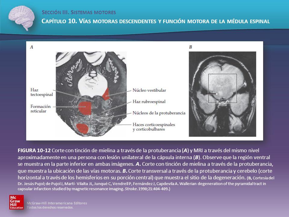 FIGURA 10-12 Corte con tinción de mielina a través de la protuberancia (A) y MRI a través del mismo nivel aproximadamente en una persona con lesión unilateral de la cápsula interna (B).