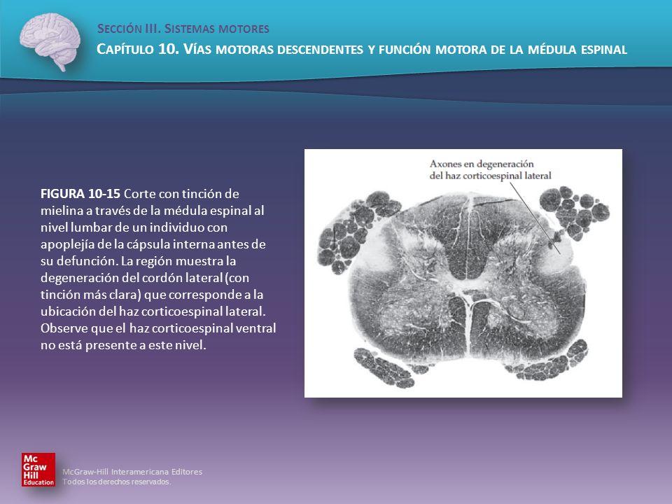 FIGURA 10-15 Corte con tinción de mielina a través de la médula espinal al nivel lumbar de un individuo con apoplejía de la cápsula interna antes de su defunción.