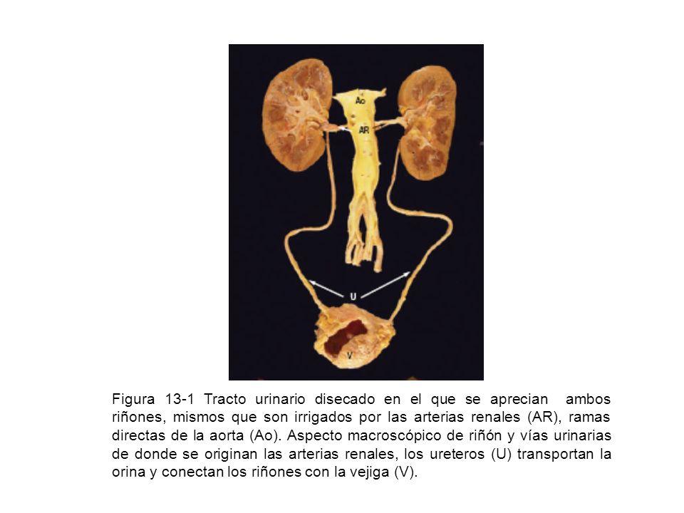 Figura 13-1 Tracto urinario disecado en el que se aprecian ambos riñones, mismos que son irrigados por las arterias renales (AR), ramas directas de la aorta (Ao).