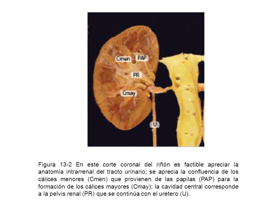 Figura 13-2 En este corte coronal del riñón es factible apreciar la anatomía intrarrenal del tracto urinario; se aprecia la confluencia de los cálices menores (Cmen) que provienen de las papilas (PAP) para la formación de los cálices mayores (Cmay); la cavidad central corresponde a la pelvis renal (PR) que se continúa con el uretero (U).