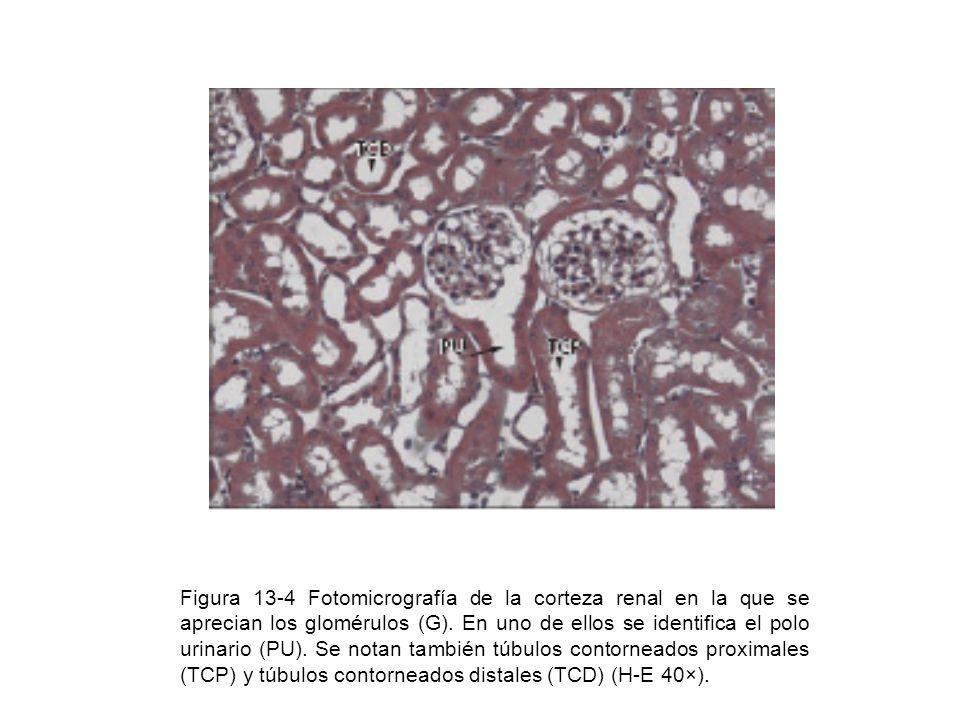 Figura 13-4 Fotomicrografía de la corteza renal en la que se aprecian los glomérulos (G).