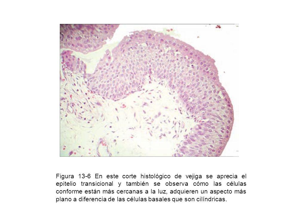 Figura 13-6 En este corte histológico de vejiga se aprecia el epitelio transicional y también se observa cómo las células conforme están más cercanas a la luz, adquieren un aspecto más plano a diferencia de las células basales que son cilíndricas.