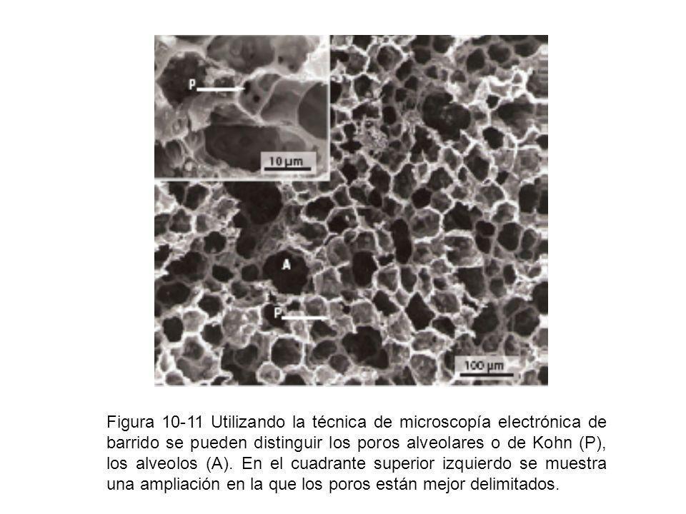 Figura 10-11 Utilizando la técnica de microscopía electrónica de barrido se pueden distinguir los poros alveolares o de Kohn (P), los alveolos (A).