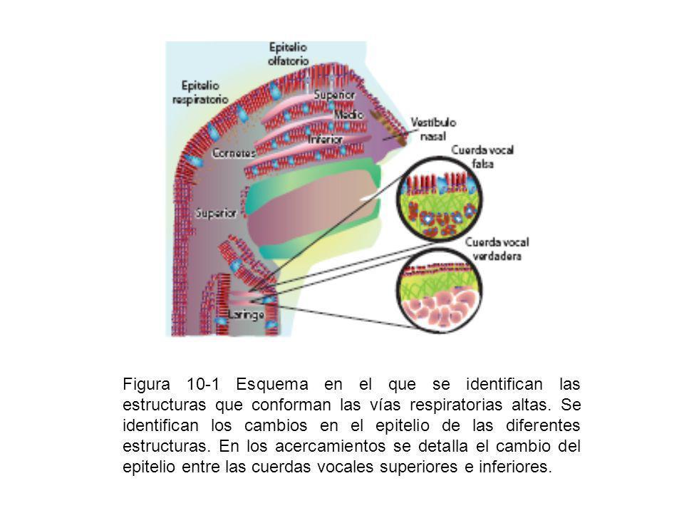 Figura 10-1 Esquema en el que se identifican las estructuras que conforman las vías respiratorias altas.