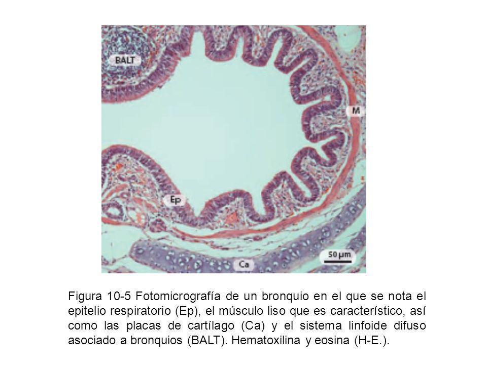 Figura 10-5 Fotomicrografía de un bronquio en el que se nota el epitelio respiratorio (Ep), el músculo liso que es característico, así como las placas de cartílago (Ca) y el sistema linfoide difuso asociado a bronquios (BALT).
