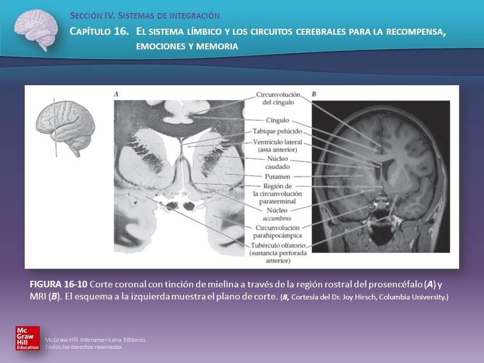 FIGURA 16-10 Corte coronal con tinción de mielina a través de la región rostral del prosencéfalo (A) y MRI (B).