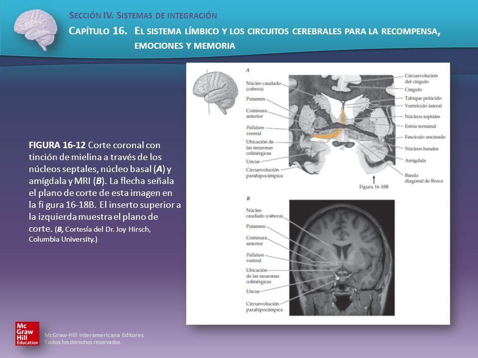 FIGURA 16-12 Corte coronal con tinción de mielina a través de los núcleos septales, núcleo basal (A) y amígdala y MRI (B).