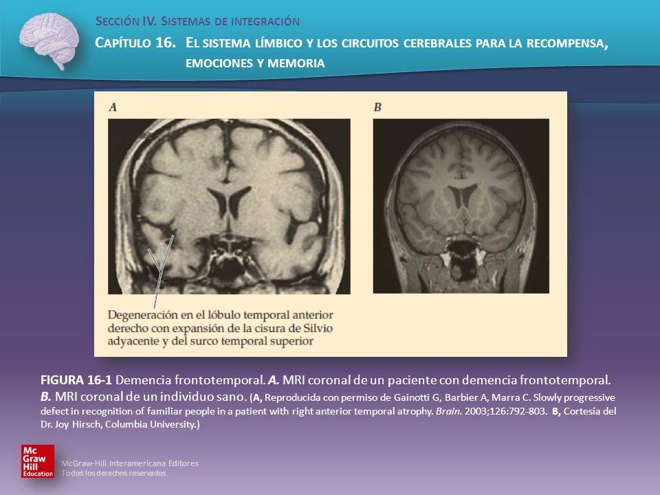 FIGURA 16-1 Demencia frontotemporal. A