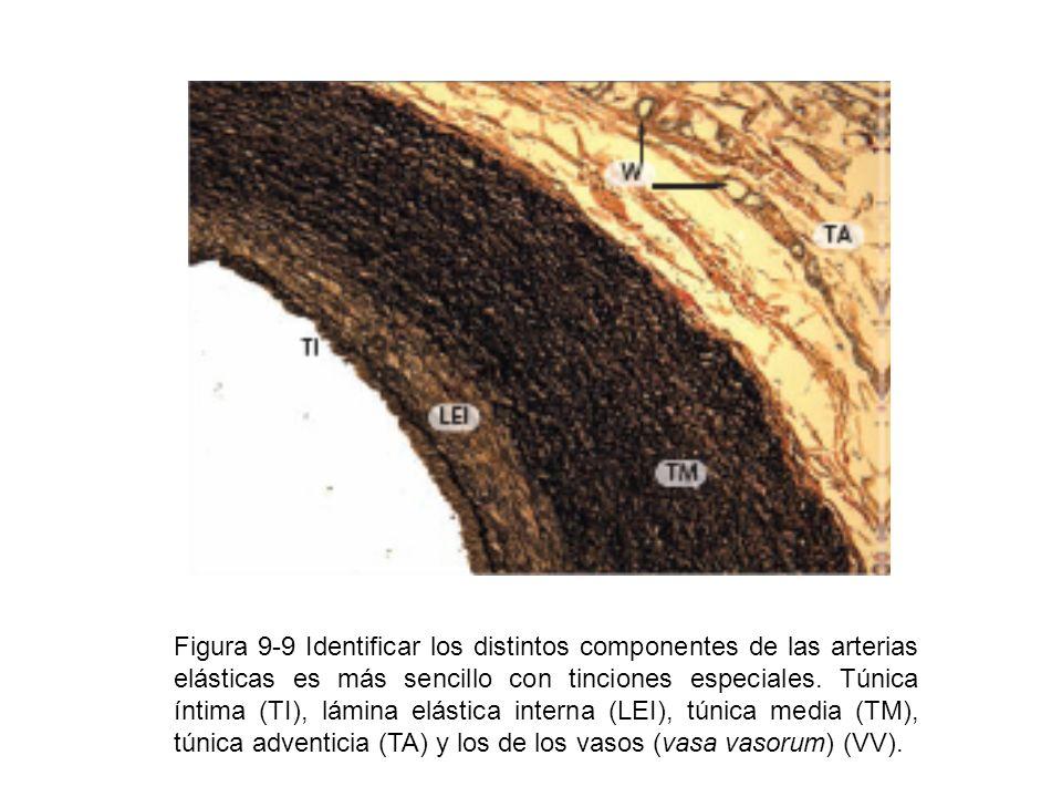 Figura 9-9 Identificar los distintos componentes de las arterias elásticas es más sencillo con tinciones especiales.