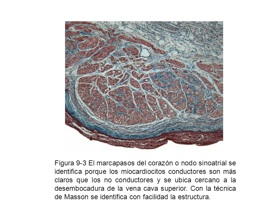 Figura 9-3 El marcapasos del corazón o nodo sinoatrial se identifica porque los miocardiocitos conductores son más claros que los no conductores y se ubica cercano a la desembocadura de la vena cava superior.
