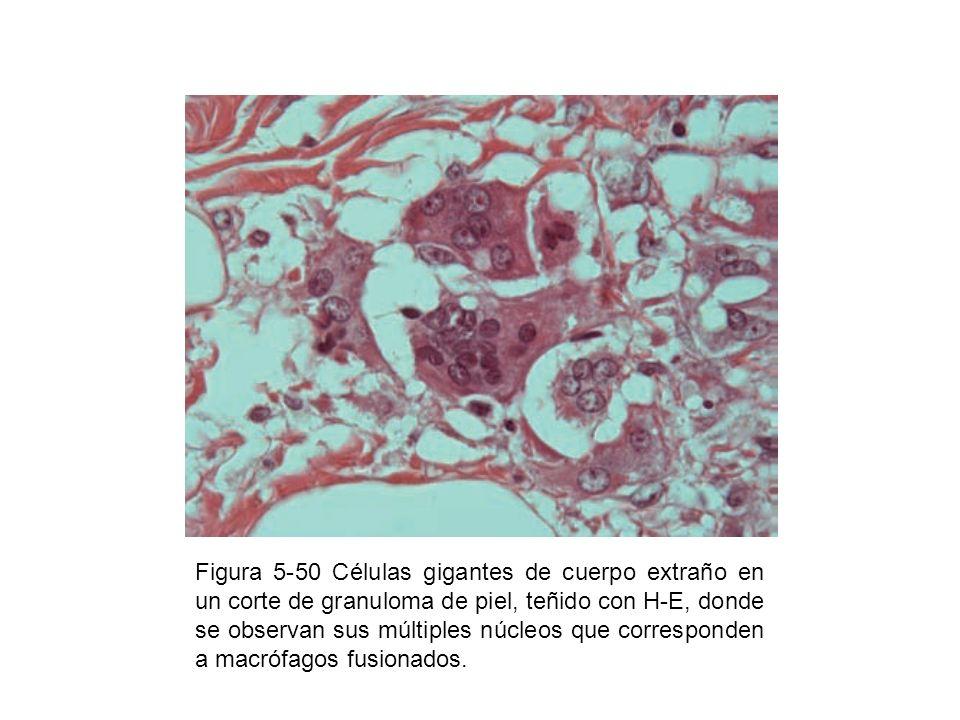 Figura 5-50 Células gigantes de cuerpo extraño en un corte de granuloma de piel, teñido con H-E, donde se observan sus múltiples núcleos que corresponden a macrófagos fusionados.