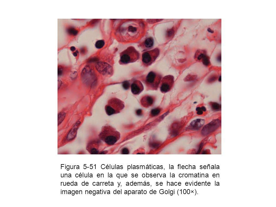 Figura 5-51 Células plasmáticas, la flecha señala una célula en la que se observa la cromatina en rueda de carreta y, además, se hace evidente la imagen negativa del aparato de Golgi (100×).