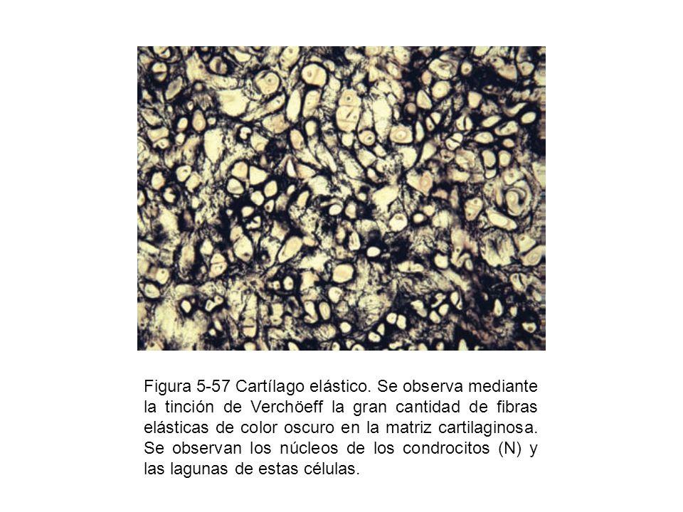 Figura 5-57 Cartílago elástico