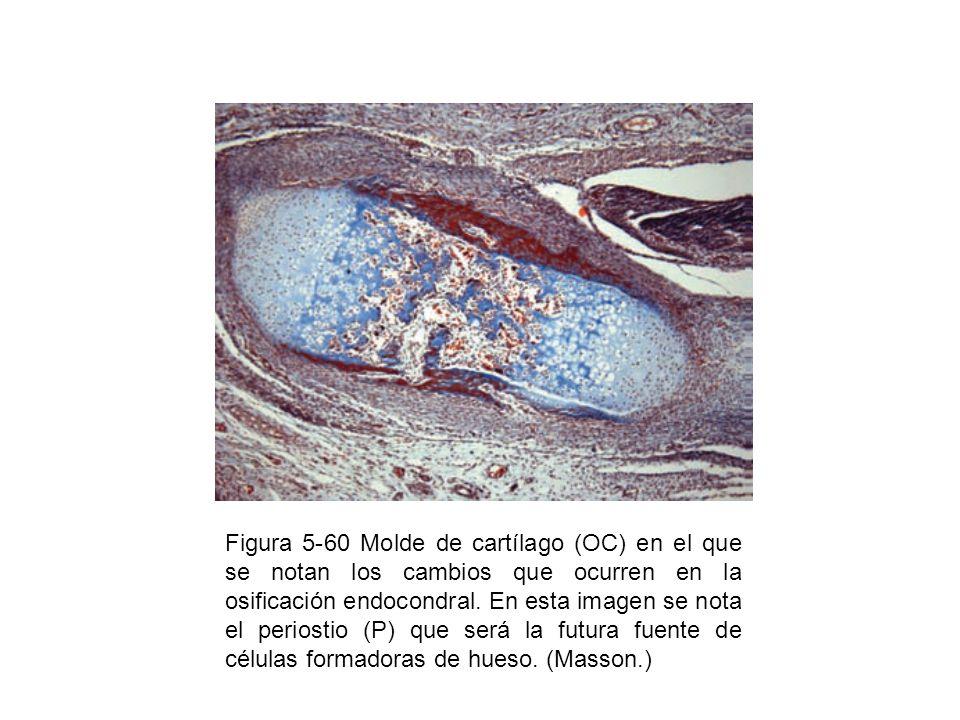 Figura 5-60 Molde de cartílago (OC) en el que se notan los cambios que ocurren en la osificación endocondral.
