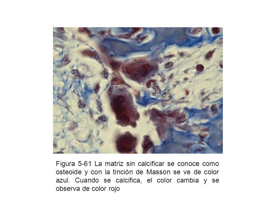Figura 5-61 La matriz sin calcificar se conoce como osteoide y con la tinción de Masson se ve de color azul.