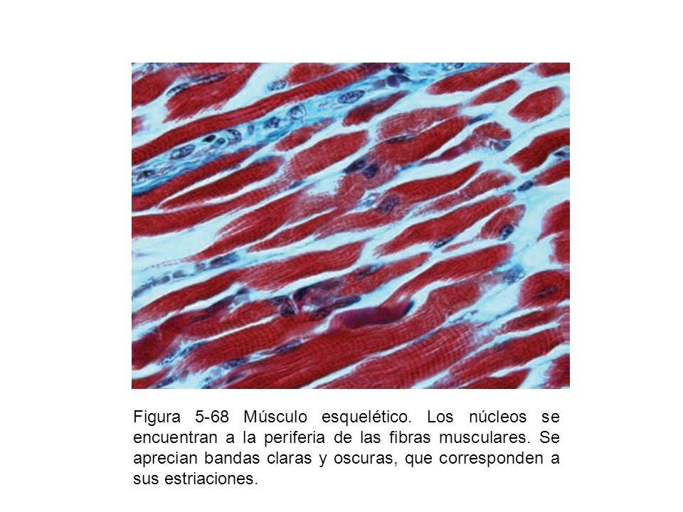 Figura 5-68 Músculo esquelético