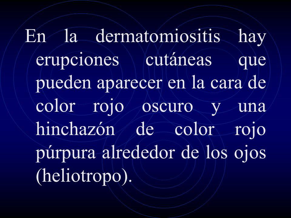En la dermatomiositis hay erupciones cutáneas que pueden aparecer en la cara de color rojo oscuro y una hinchazón de color rojo púrpura alrededor de los ojos (heliotropo).