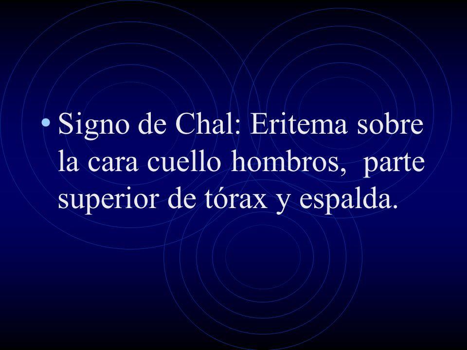 Signo de Chal: Eritema sobre la cara cuello hombros, parte superior de tórax y espalda.