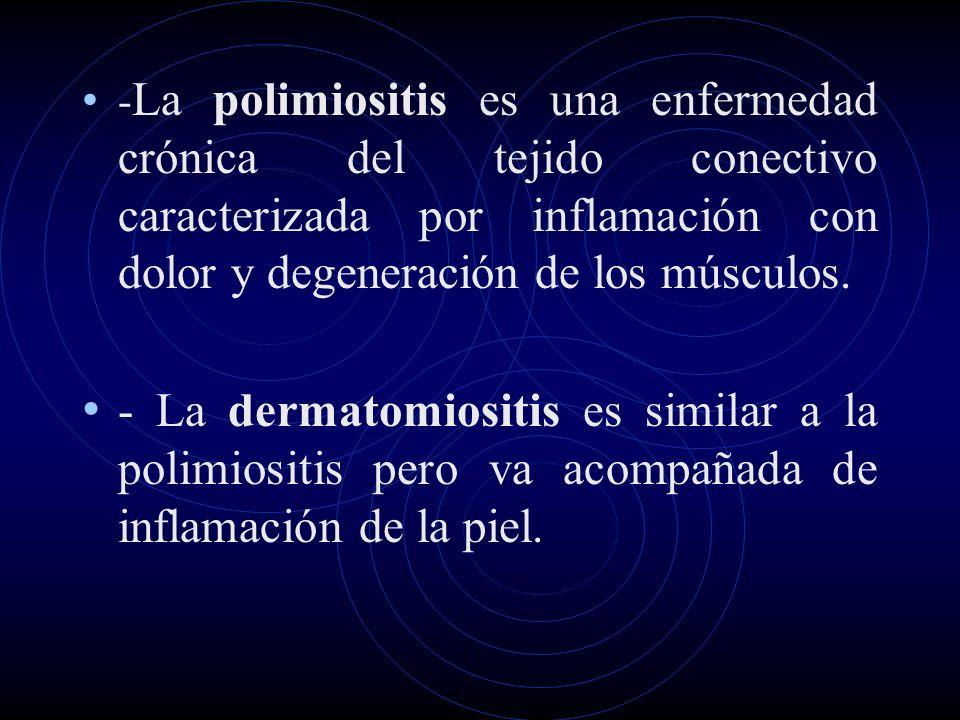 -La polimiositis es una enfermedad crónica del tejido conectivo caracterizada por inflamación con dolor y degeneración de los músculos.