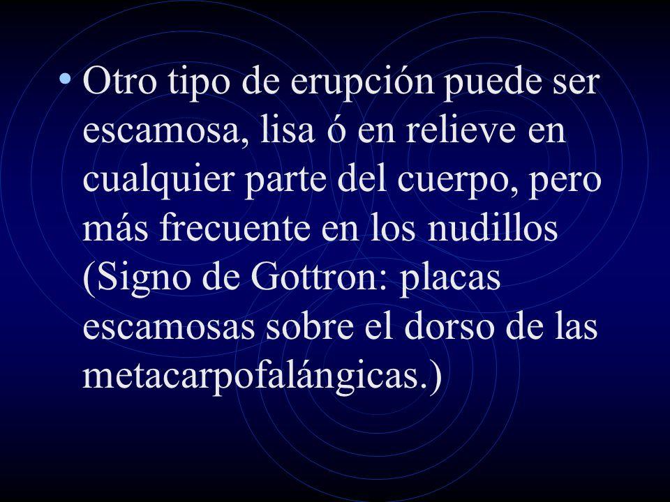 Otro tipo de erupción puede ser escamosa, lisa ó en relieve en cualquier parte del cuerpo, pero más frecuente en los nudillos (Signo de Gottron: placas escamosas sobre el dorso de las metacarpofalángicas.)