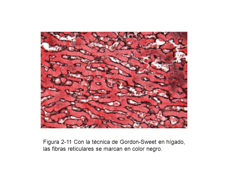 Figura 2-11 Con la técnica de Gordon-Sweet en hígado, las fibras reticulares se marcan en color negro.