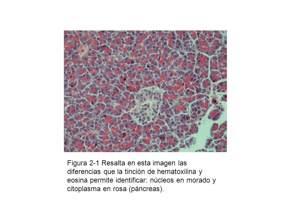 Figura 2-1 Resalta en esta imagen las diferencias que la tinción de hematoxilina y eosina permite identificar: núcleos en morado y citoplasma en rosa (páncreas).