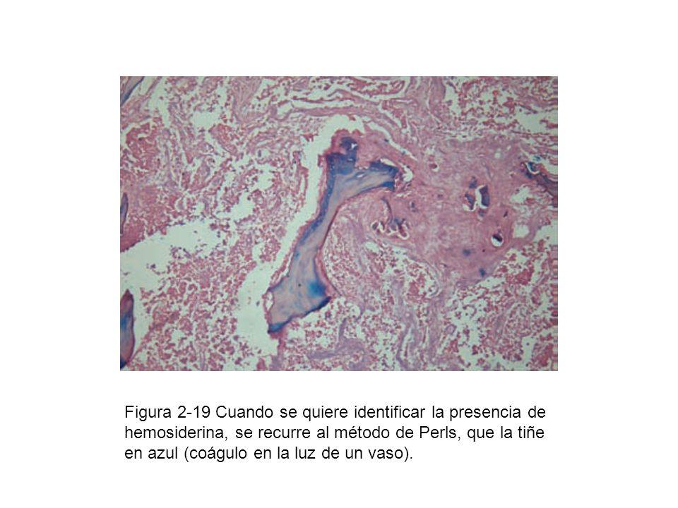 Figura 2-19 Cuando se quiere identificar la presencia de hemosiderina, se recurre al método de Perls, que la tiñe en azul (coágulo en la luz de un vaso).