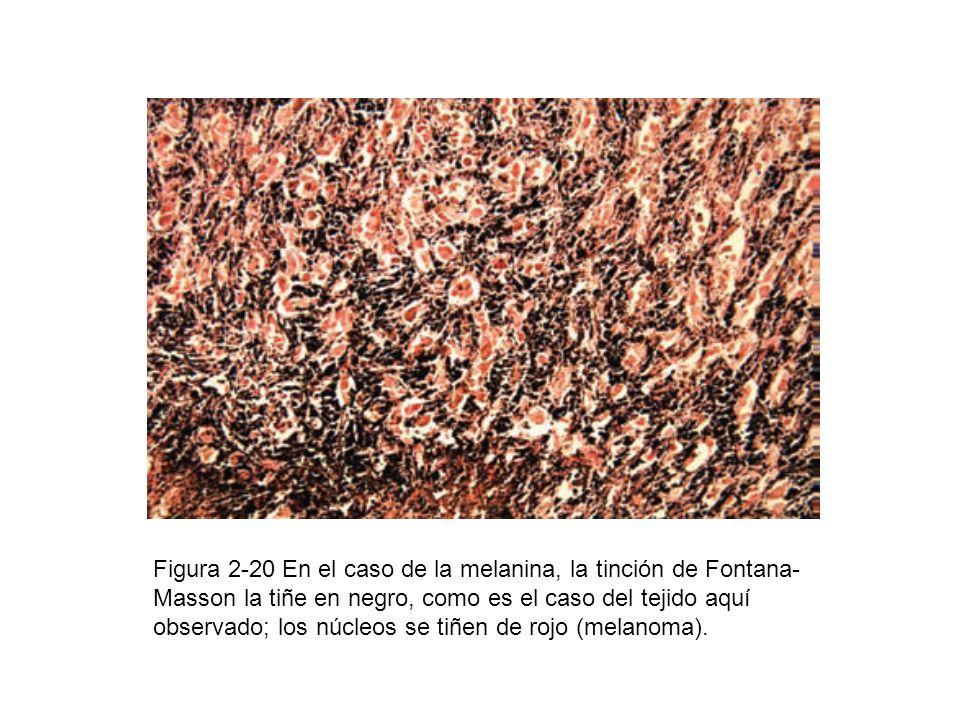 Figura 2-20 En el caso de la melanina, la tinción de Fontana-Masson la tiñe en negro, como es el caso del tejido aquí observado; los núcleos se tiñen de rojo (melanoma).