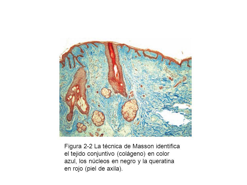 Figura 2-2 La técnica de Masson identifica el tejido conjuntivo (colágeno) en color azul, los núcleos en negro y la queratina en rojo (piel de axila).