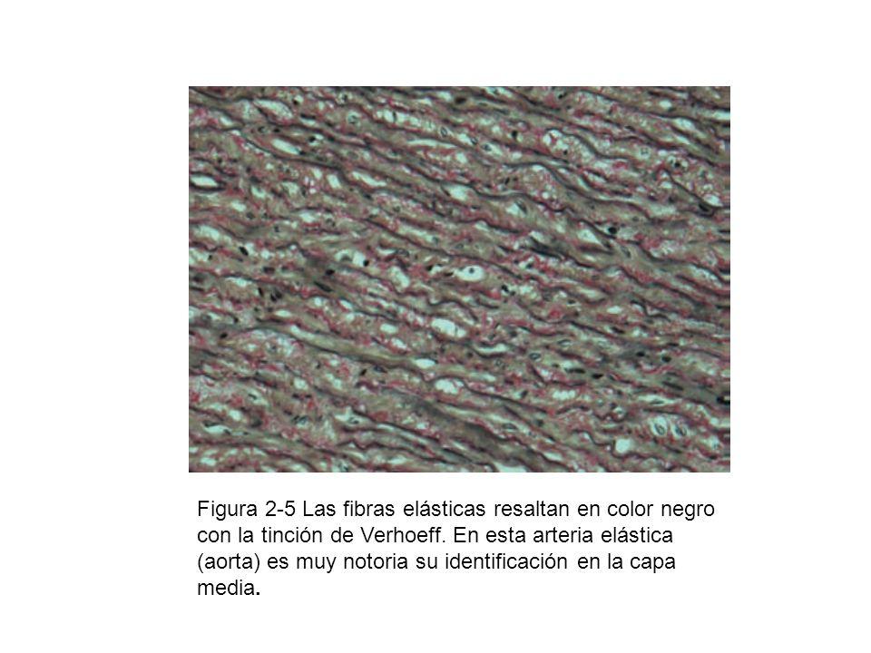 Figura 2-5 Las fibras elásticas resaltan en color negro con la tinción de Verhoeff.