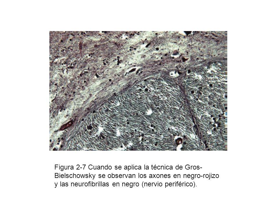 Figura 2-7 Cuando se aplica la técnica de Gros-Bielschowsky se observan los axones en negro-rojizo y las neurofibrillas en negro (nervio periférico).