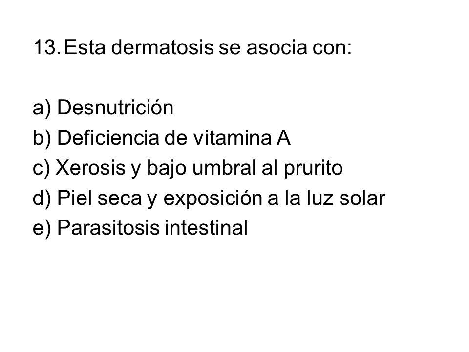 Esta dermatosis se asocia con: