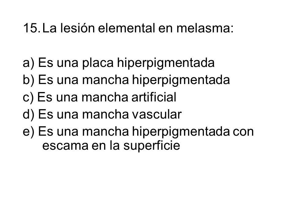 La lesión elemental en melasma: