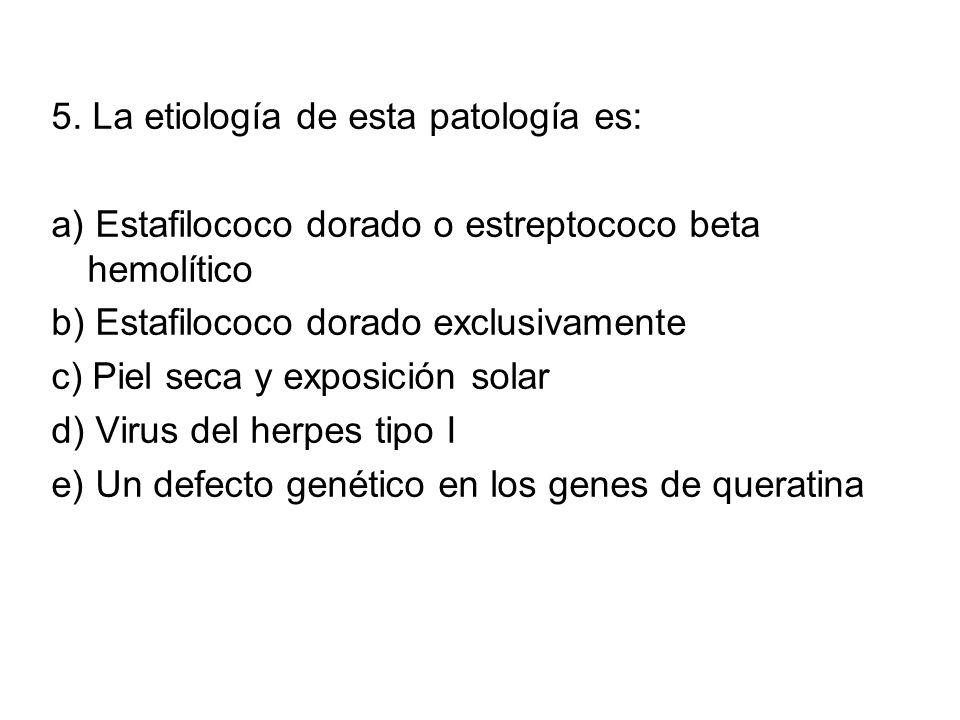 5. La etiología de esta patología es: