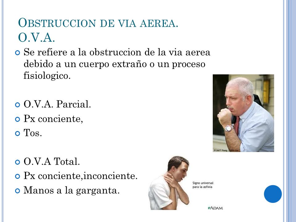 Obstruccion de via aerea. O.V.A.