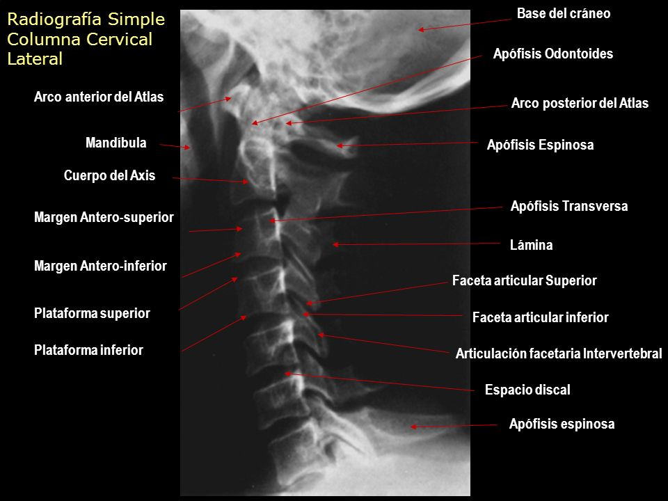 Único Anatomía Articulación Facetaria Inspiración - Anatomía de Las ...